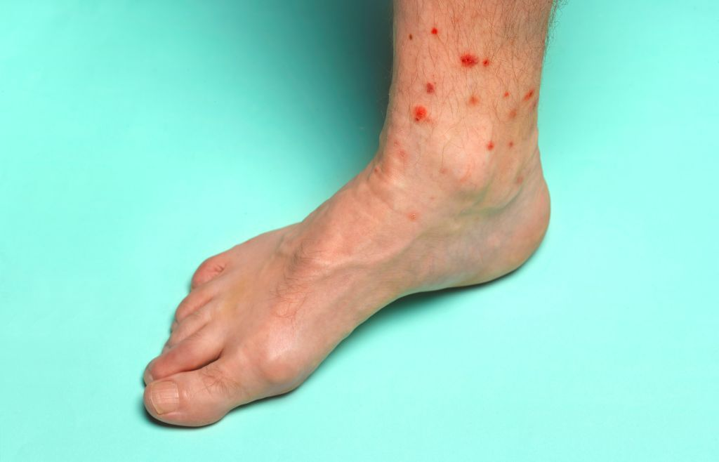 Foot with summer insect bites