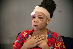 'They ignited the situation': Fort Lauderdale police fractured eye socket of peaceful protester